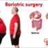 Top 5 Bariatric Surgery Facts Everyone Should Know